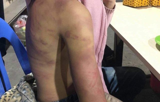 Hà Nội: Bé gái 12 tuổi tố bị người tình của mẹ xâm hại tình dục, đánh đập dã man